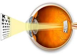 Глазные капли для улучшения резкости зрения