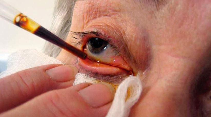 Осложнения после операции по замене хрусталика глаза