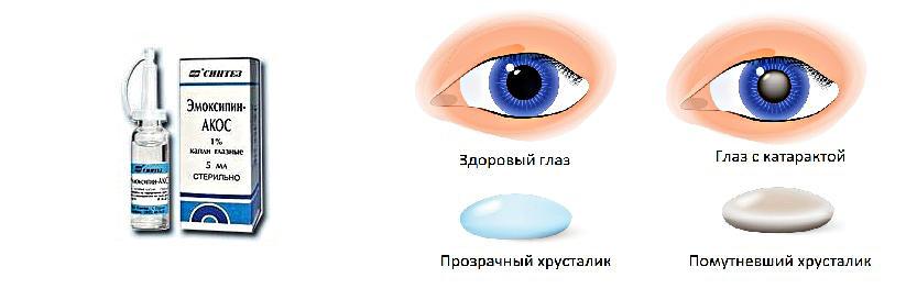Капли в глаза от катаракты при диабете