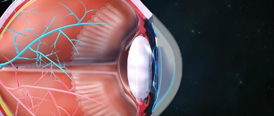 Аккомодация глаза человека