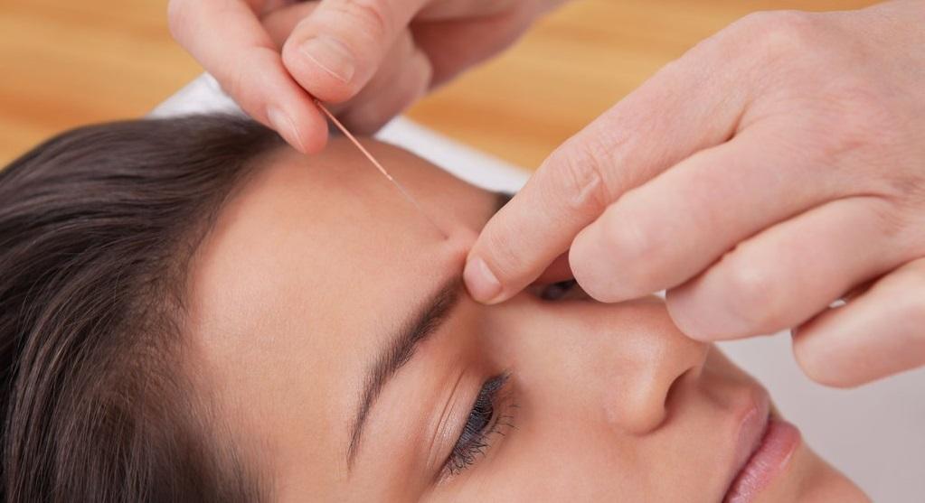 Активные точки при катаракте