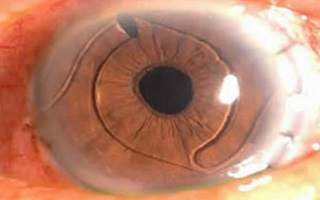 Смещение хрусталика глаза