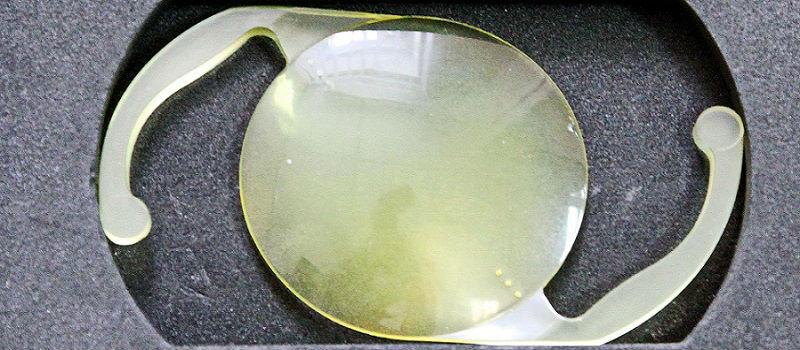 ИОЛ с желтым фильтром